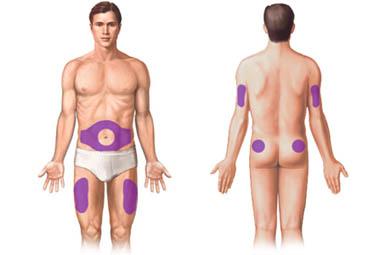 Locuri injectare insulina