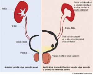 prostata adenom