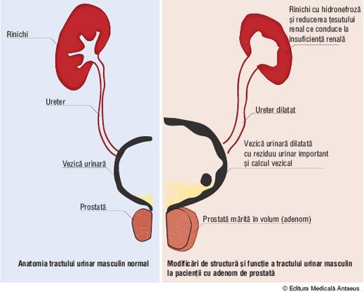 adenomul_de_prostata2