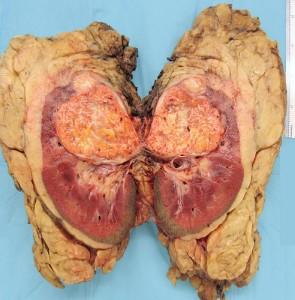 cancerul de rinichi
