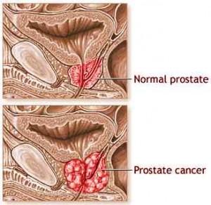 Carcinom prostatic tratament