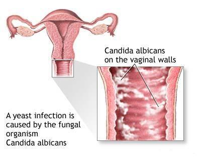 Candidoza_vaginala