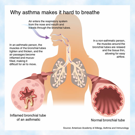 schema astm bronsic