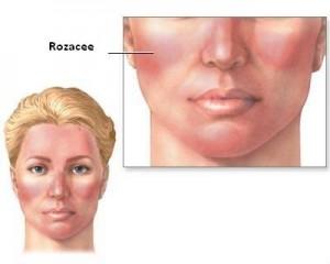 dieta pentru acnee rozacee