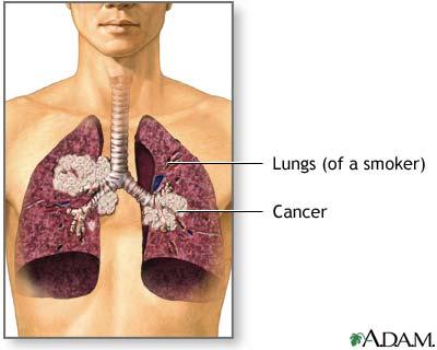 cancer de plaman - cancer pulmonar