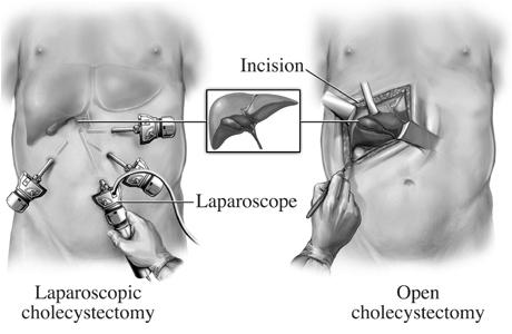 Colecistectomie laparoscopica si colecistectomie clasica