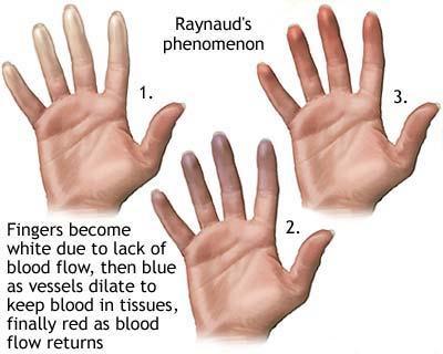 sindromul raynaud