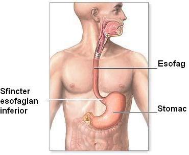 sfincter esofagian inferior - reflux - pirozis
