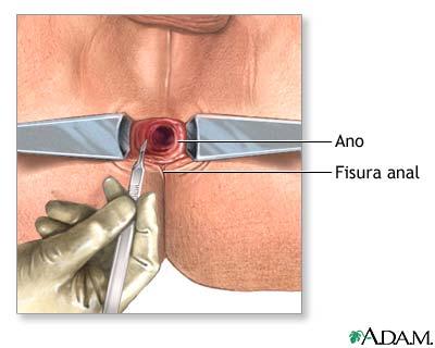 fisura anala