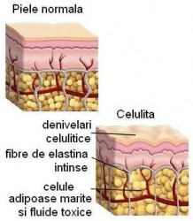 cum se formeaza celulita