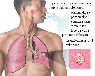 tbc pulmonar transmitere