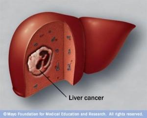 hepatocarcinomul