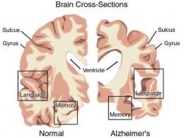 alzheimer creier