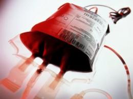 anemia-aplastica