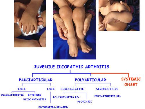 artrita juvenila reumatoida