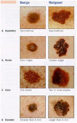 cancer piele benign spre malign