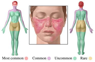 lupus poze2