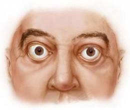 exoftalmie hipertiroidia