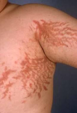 vergeturi sindrom cushing