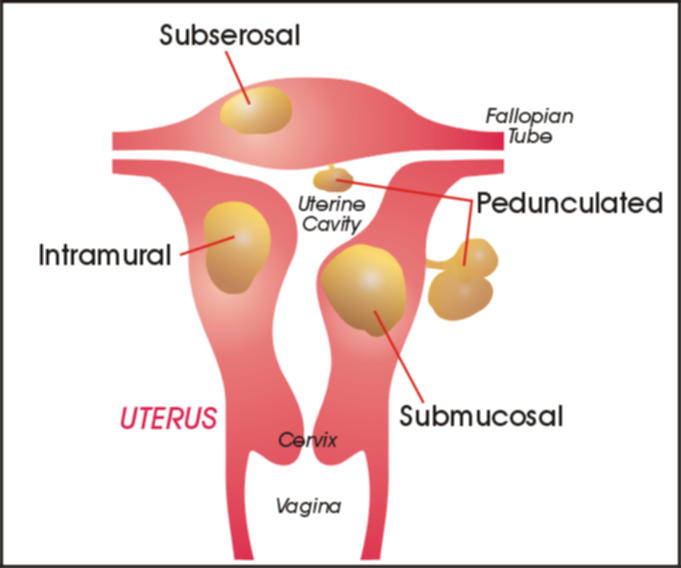 puteți pierde în greutate cu fibroame uterine