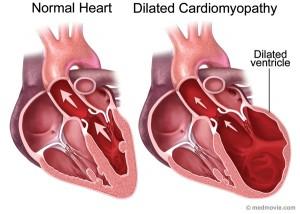 cardiomiopatie dilatativa
