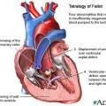 defecte inima in tetralogia Fallot