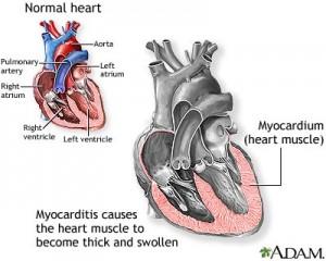 miocardita aspect inima