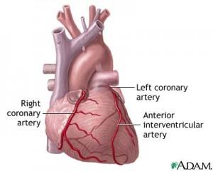 artere coronare inima