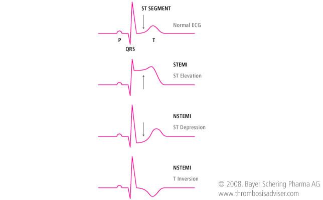 modificare segment ST in infarct miocardic acut