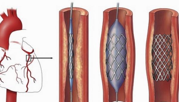 stent pe artera coronara