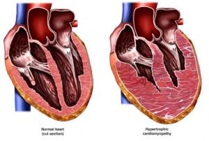 cardiomiopatie hipertrofica