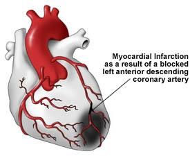 infarct miocardic anterior pe LAD