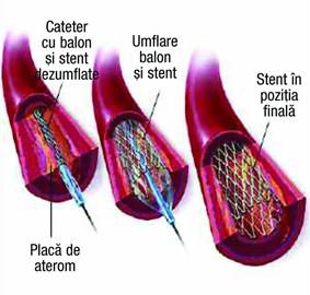 Montare Stent in artera coronara