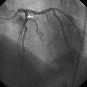 coronarografie cateterism cardiac