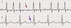 fibrilatie atriala si ritm sinusal