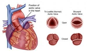 valva aortica inima