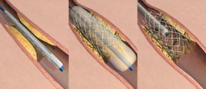 angioplastie cu implant de stent