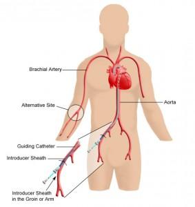 cateterism cardiac loc punctie