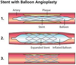 implant de stent