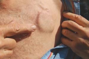 stimulator cardiac sub piele